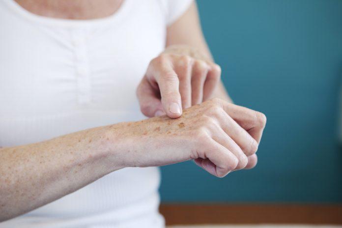 Ellerdeki yaşlılık lekeleri