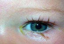 Bebeklerde göz çapaklanması nasıl temizlenir