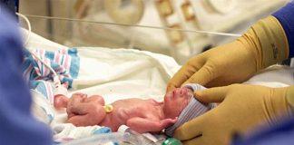Premature Bebek