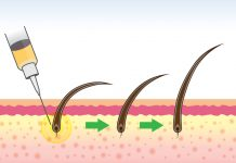 Saç Ekimi iyileşme süreci