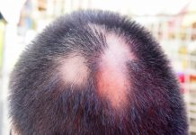 Saç Kıran Tedavisi