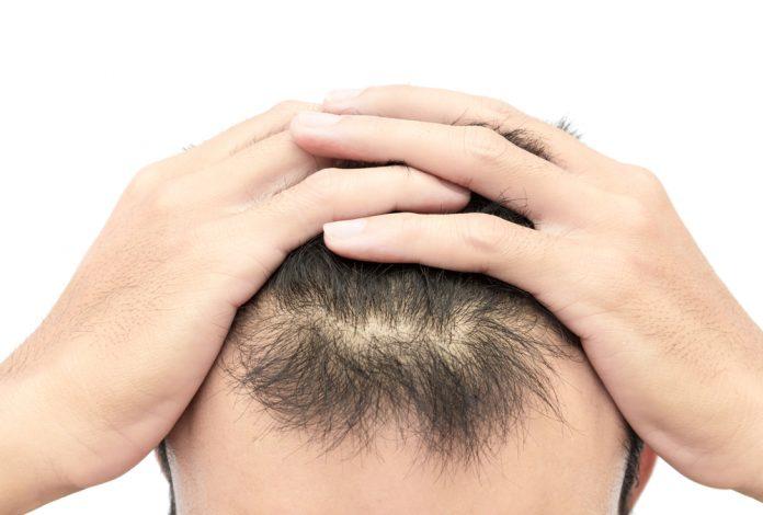 Hatalı Saç Ekimi