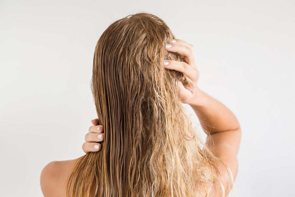 Saç yanması nedir