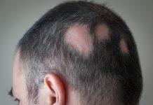 Saçkıran tedavisi