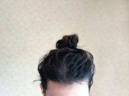 Yağlı saç genetik mi