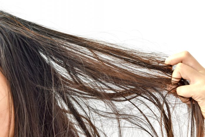 Yağlı saç tipi