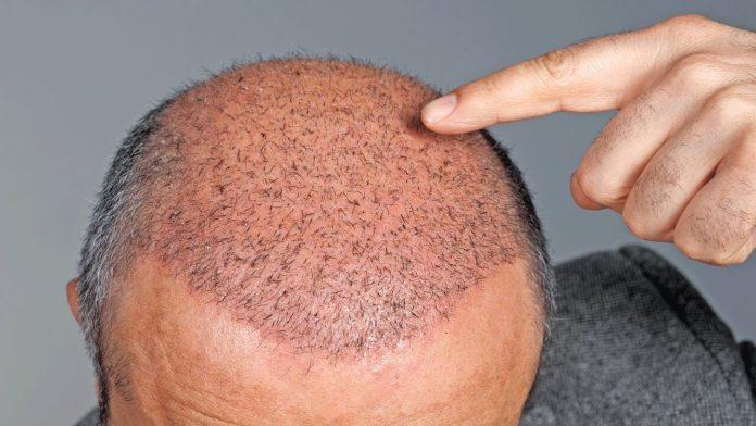 Saç ekimi tavsiyeleri