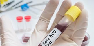 Beta HCG Nedir